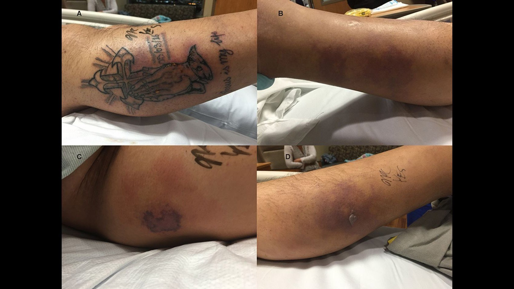 Man dies after ignoring new tattoo advice, catches infection from ocean