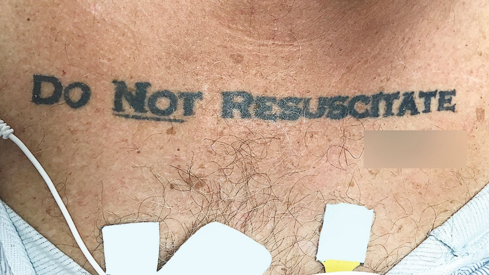 Doctors taken aback by unconscious patient's 'do not resuscitate' tattoo