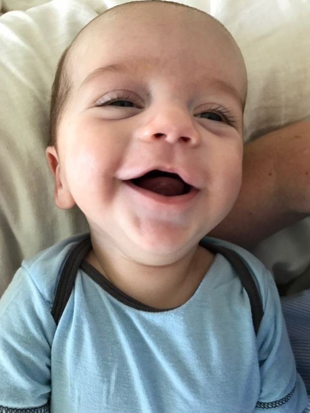 Jimmy Kimmel tweeted an update and adorable photo of his baby son on Friday, July 21, 2017, more than two months after opening up about his newborn's health on his late-night talk show. In doing so he also re-entered the health care debate.