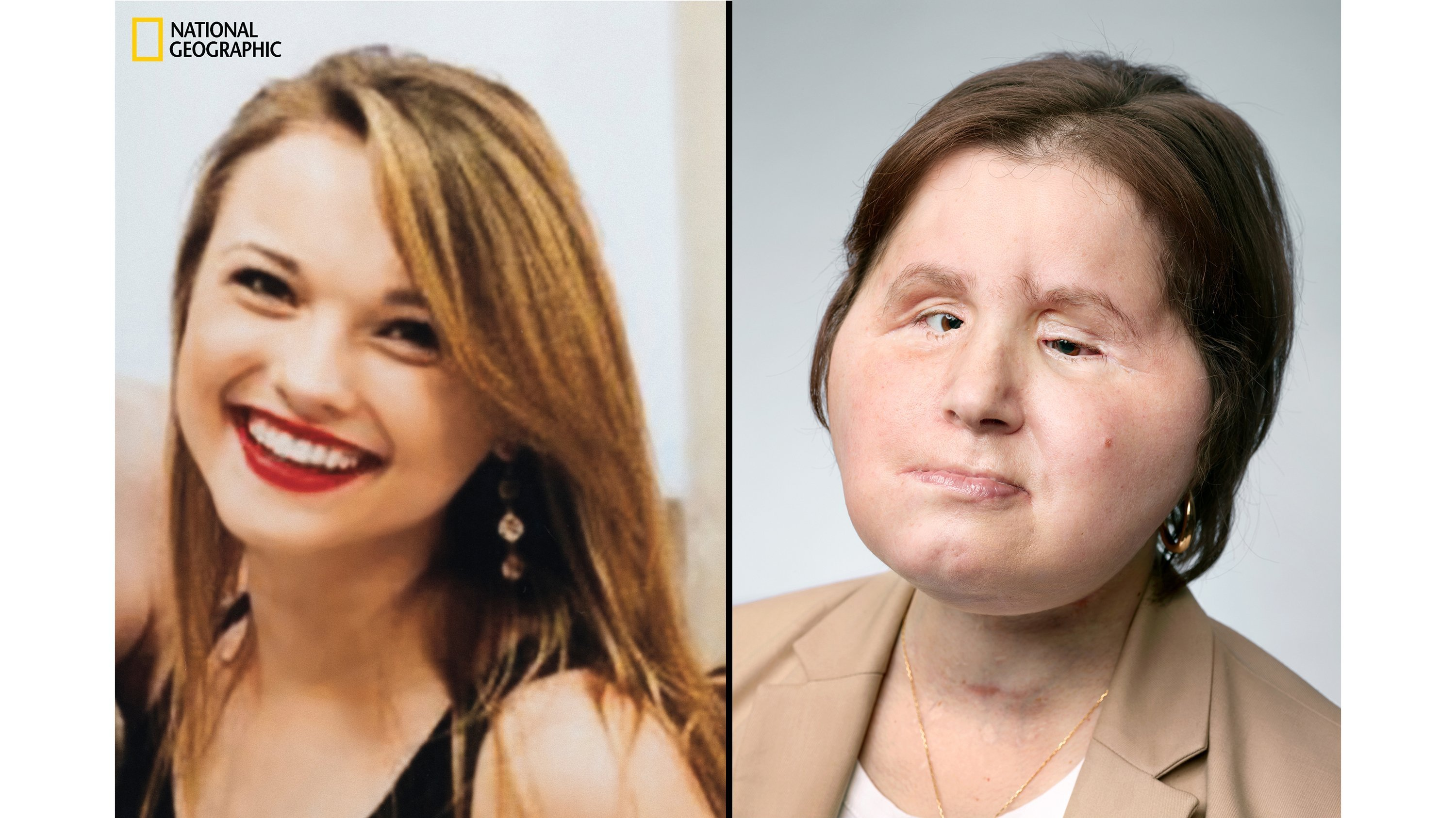 21-year-old woman becomes youngest in United States  to receive face transplant