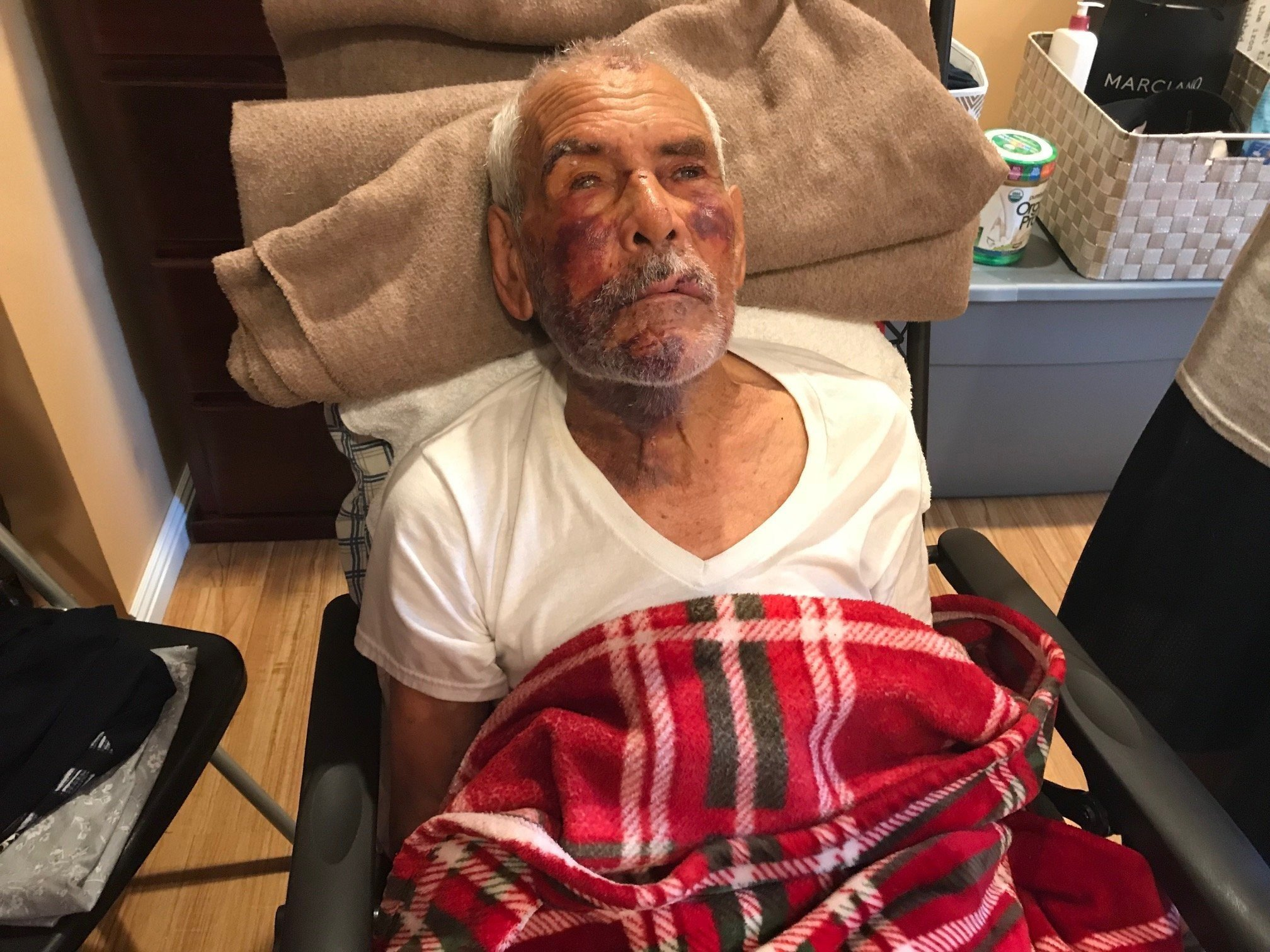 A week after a 91-year-old Mexican man says he was beaten with a concrete block in Southern California, a woman has been arrested in connection with the assault, authorities said.
